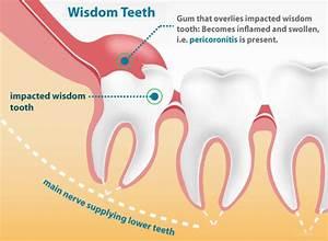 Wisdom Teeth Removal Mississauga
