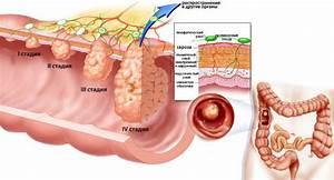 Полипы в кишечнике и геморрой