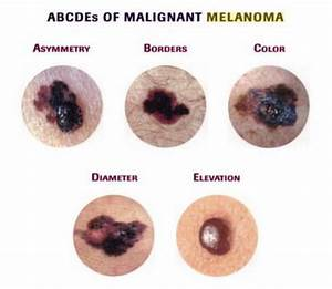 Acral Lentiginous Melanoma - Pictures, Symptoms, Causes ...