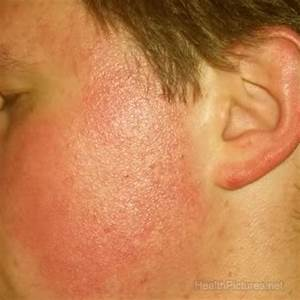 The gallery for --> Keratosis Pilaris Face