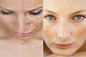 wat te doen tegen pigmentvlekken gezicht