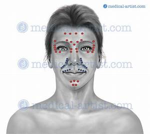 Medical Illustrations Of Cosmetic Surgery