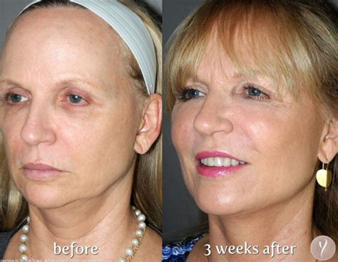miracle  lift  surgical face lift  michigan