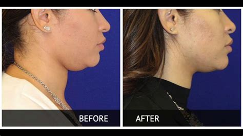 Kybella Injections With Before And After  Youtube