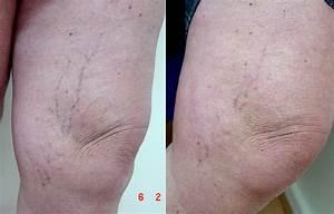 Strakke huid benen