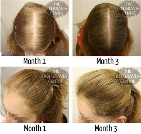 belgravia hair loss blog