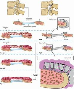 Spinal Fusion Device In Development Eliminates Bone Graft And Pedicle Screws