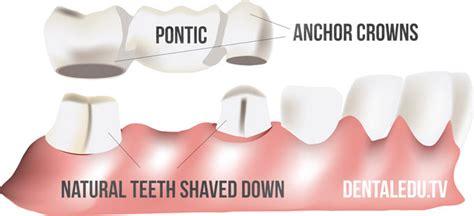 dental bridges  implants comparison  costs  benefits