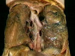 Pleura  Trachea  Esophagus