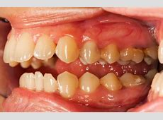 Swollen Gums Trusted Health Resources