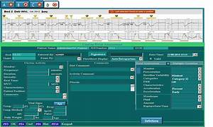 Epic Charting System Full Continuum Documentation Perigen