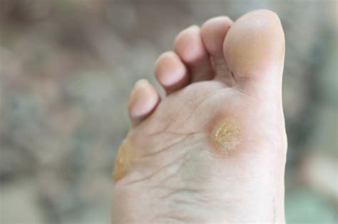what is a planters wart warts causes types and treatments