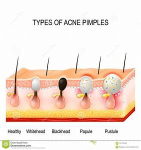 Types Of Acne Pimples Stock Vector  Illustration Of Physiology