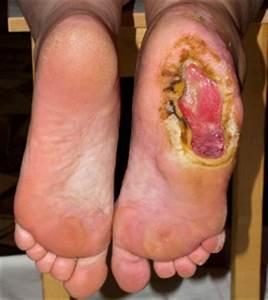 Язвы при псориазе на ногах