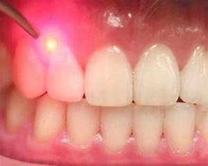 Thurston Oaks Dental - Laser Canker Sore Treatment ...