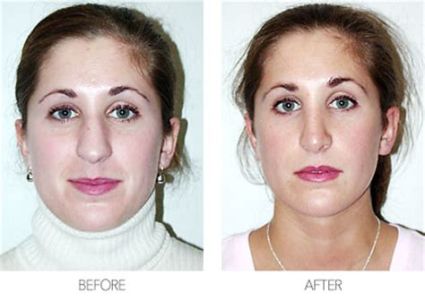 Rhinoplasty  Nose Job — Plastic Surgery Mobile Alabama. Project Management In Software Development. Best Florist Los Angeles Appy For Credit Card. Human Resources Templates Online Support Chat. Archaeology Programs In The Us. Property Management Snellville Ga. Roofing Contractors Lexington Ky. Buying Used Honda Civic Front Bumper Body Kit. Psychotic Epileptic Disorder