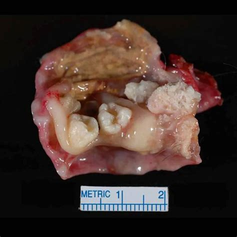 pilonidal cyst teeth a dermoid cyst or teratoma in the ovary typically contains