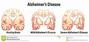 Alzheimer's Disease stock illustration. Illustration of ...