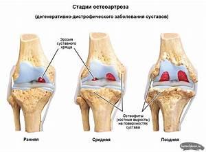 Лечение артроза коленного сустава в волгограде