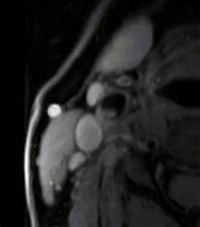 Artery Carotid Assessment Disease Cumming Imaging Oral