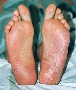 psoriasis on feet symptoms
