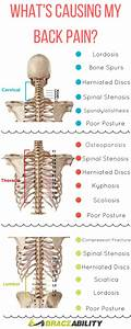 Back Pain  The Complete Guide To Diagnosing Your Back