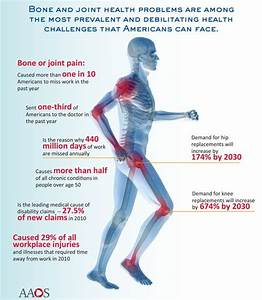 Why Do My Joints Hurt  Causes Of Joint Pain And Join Pain Medication  U2013 Nveda