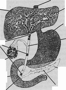 Чистка печени сорбитом при удаленном желчном пузыре