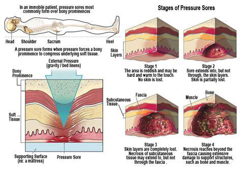 Bed Sores Stages by Bed Sores Pressure Sores Doolan Platt Setarehdoolan