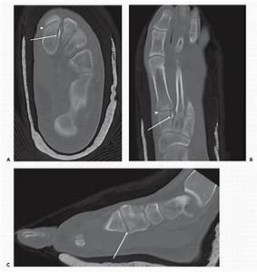 Diagnostic Imaging Techniques Of The Foot And Ankle