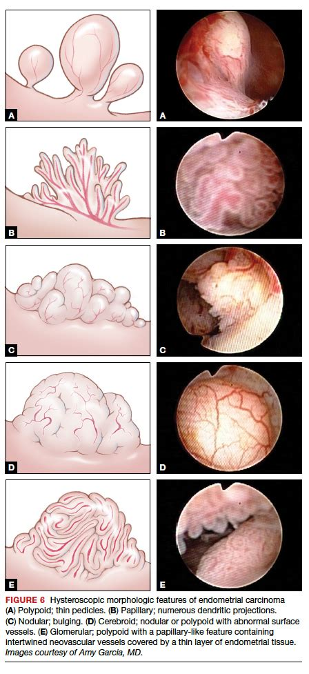 The role of hysteroscopy in diagnosing endometrial cancer ...