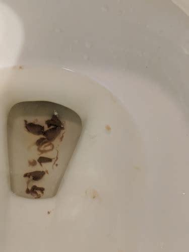 poop    threadworm forums