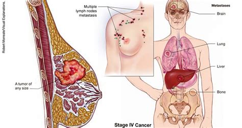 Invasive Versus Metastatic Breast Cancer  Healthandsymptoms. Ms Office Classes Online Cheap Car Rentals Uk. Blanco Family Dentistry Box Manufacturers Usa. Most Popular Accounting Software. Best Looking Cell Phones Hp33s Survey Programs. Create Html Email Templates Capitol One Auto. Side Effects Of Phentermine 37 5. Great American Insurance Company. Residential Treatment Facility