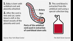 Cord Blood Banking -cord blood banking cost -How it works ...