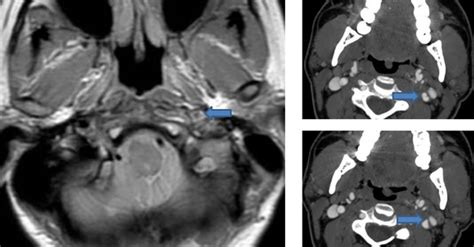 Archives of Neuroscience | Cervical Artery Dissection: A ...