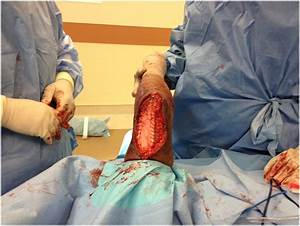 Case Report  Delayed Surgical Reconstruction With An