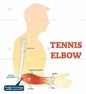 Tennis Elbow Medical Fitness Anatomy Vector Illustration