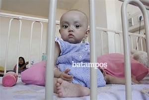 Salah Asup Susu Penyebab Gizi Buruk Bayi 9 Bulan ...