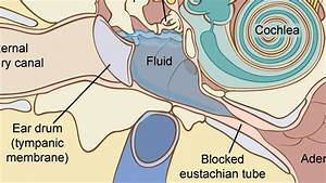 How To Treat Fluid In The Ear