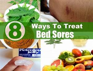8 ways to treat bed sores diy health remedy With bed sores treatment at home