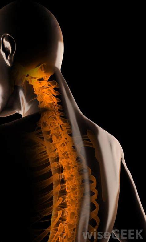 intervertebral disc  pictures