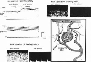 Cerebral Hemodynamics In Angioma Patients  An