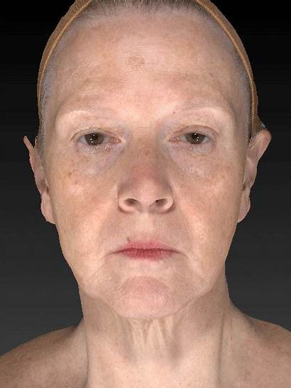 Aging Animation 3d Anti Assessment Technology Face