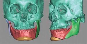 Jaw Surgery Surprise Az  Oral Surgeon  Orthognathic Surgery