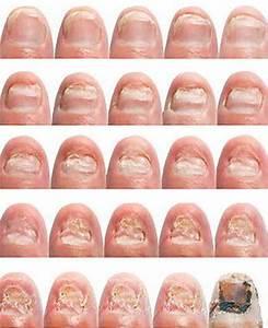 Можно ли прополисом вылечить грибок ногтей