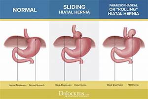 Hiatal Hernia  What It Is And Natural Treatments