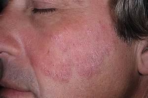 Мази от псориаза на кожи головы