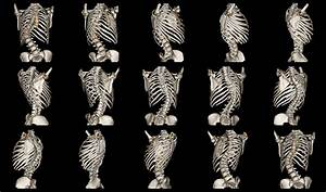Scoliosis Awareness Month - Health Alliance Blog