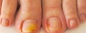 Средство от грибка ногтей на ногах недорогое форум