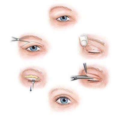 在夏季做双眼皮手术伤口会更容易发炎感染?_千颜网_您身边的整形管家